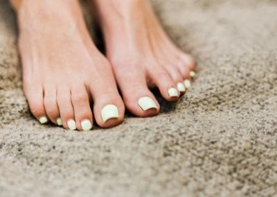 Got Thick Toenails? Causes and Treatment