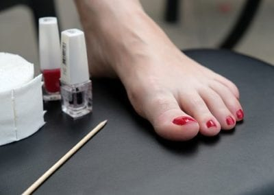 Here's How To Treat Brown Spots And Toenail Discoloration